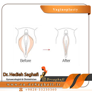 vaginal cosmetic surgery